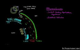 Blood Vessel Diseases : Atherosclerosis ... Volume Science & Economics series by Rishi Desai