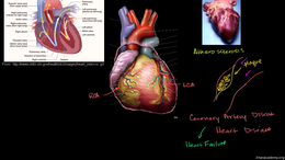Heart Disease and Stroke : Heart Disease... Volume Science & Economics series by Sal Khan
