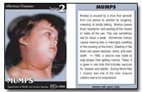 Mumps : Infectious Diseases Series 2 by Department of Health and Human Services