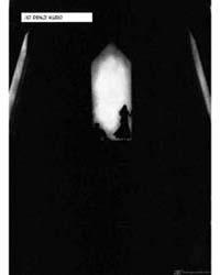 Abara 10: Denji Kudo Volume Vol. 10 by Nihei, Tsutomu